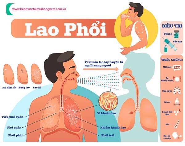 https://benhvientaimuihonghcm.com.vn/upload/hinhanh/benh-ho-lao-phoi.jpg