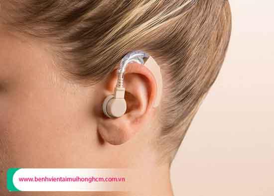 Tìm hiểu giá máy trợ thính năm 2021